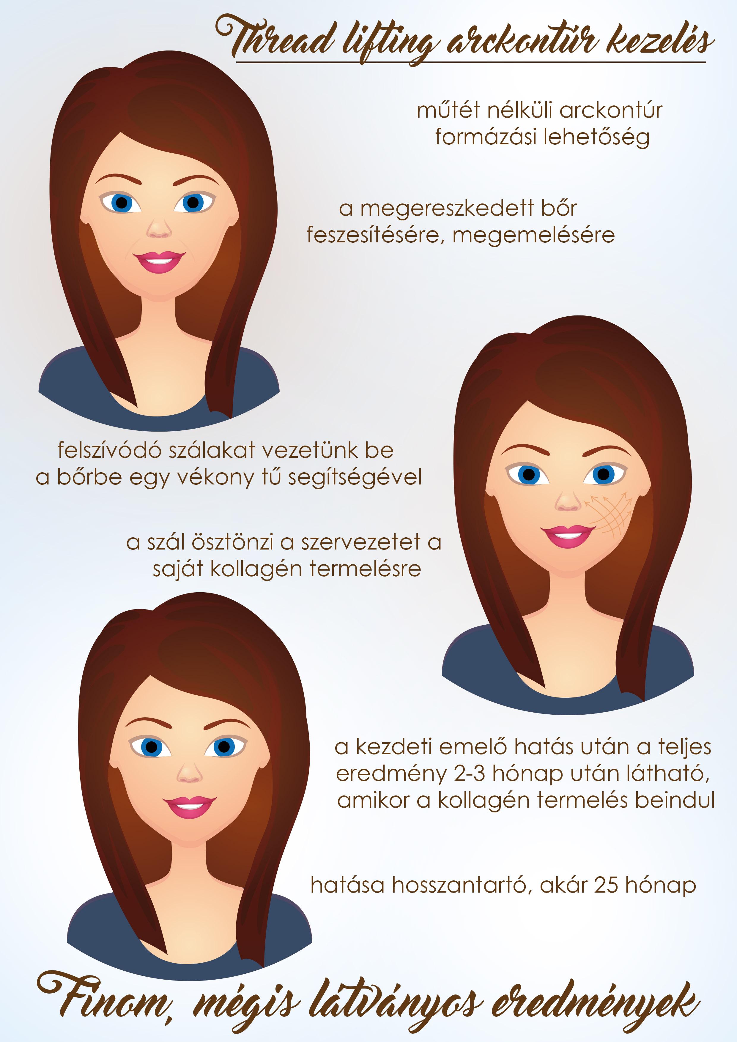 szálas arckontúrozás